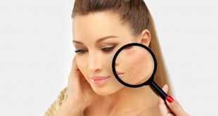 كيف أخفي كدمات الوجه بالمكياج ليبدو جميلاً