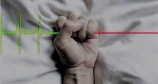 ثكرات الموت وتشخيص حالة الوفاة ( الموت )