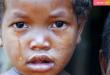 كورونا يتسبب بالجوع للأفارقة